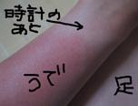 日焼け.JPG